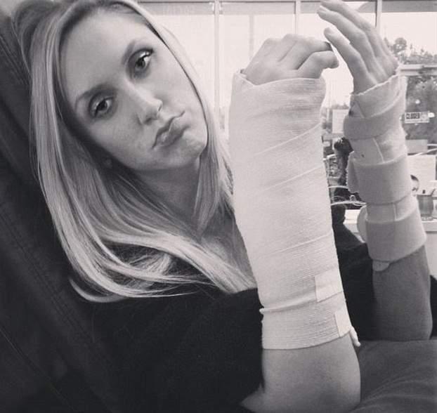 Lara Yunaska publicó esta foto a Instagram mostrando sus muñecas vendadas, heridas sólo unas semanas antes de su boda. (Instagram)