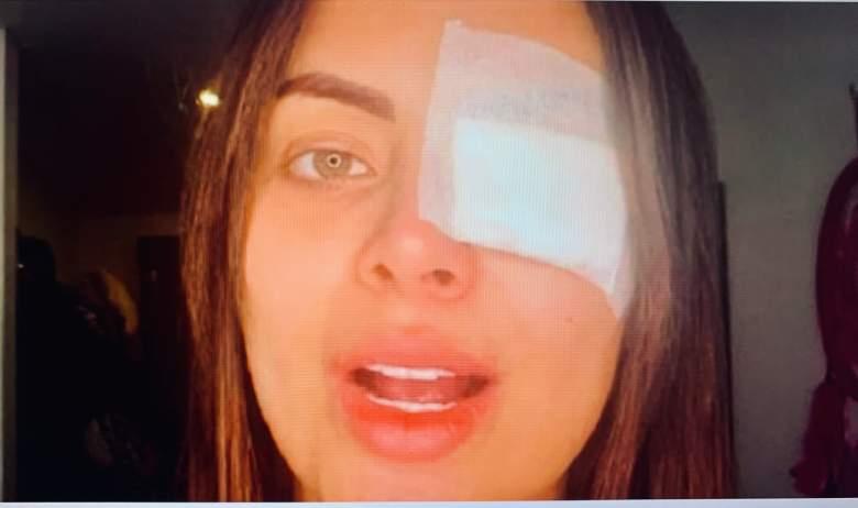 Modelo Laura González casi pierde el ojo por procedimiento estético: VIDEO