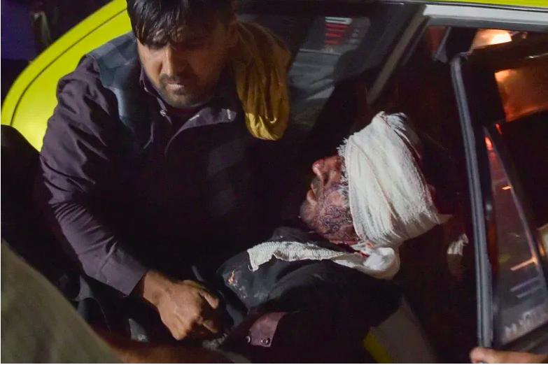 El personal médico y hospitalario saca a un hombre herido de un automóvil para recibir tratamiento después de dos explosiones, en las que murieron al menos cinco e hirieron a una docena, fuera del aeropuerto de Kabul el 26 de agosto de 2021.
